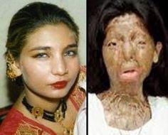 Our men throw acid in our faces, destroy our lives but we never stop loving men. (Warning: Violent images)
