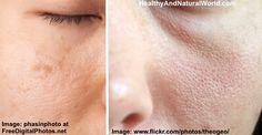 Use these natural and cheap treatments to get rid of your large pores.