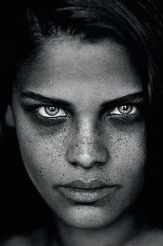.#freckles