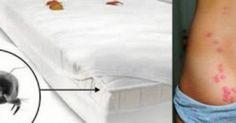 Η τακτική αλλαγή σεντονιών στο κρεβάτι, από μόνη της, δεν εξασφαλίζει σε καμία περίπτωση την υγιεινή του. Σύμφωνα με έρευνες σε ένα θεωρούμενο ως καθαρό στ