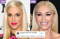 dua lipa plastic surgery - Google Search Gwen Stefani, Plastic Surgery, Photoshop, Google Search, Celebrities, Face, Beauty, Women, Celebrity