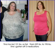 """My client, Tina, is an amazing inspiration!  She has burned over 100 lbs. with the Take Shape For Life Medifast program and is well on her way to her healthy weight!  She knows that """"diets"""" don't work, it has to be a lifestyle change.  Being a Health Coach to clients like Tina is the most amazing thing I could do with my life!  www.pursuehealth.tsfl.com"""