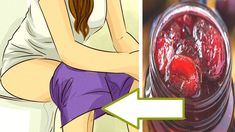 Empty Your Bowels In Just 2 Minutes! Clean Your Colon! Improve Your Digestion! The digestive tract and the process of digestion is a complex mechanism. Bowel Cleanse, Colon Cleanse Diet, Natural Colon Cleanse, Natural Health Remedies, Home Remedies, Cleaning Your Colon, La Constipation, Body Detox, Coco
