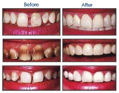 Ringwood dental provides the best veneers to fix teeth that are significantly discolored, chipped, pitted, crooked or have unwanted spaces. For more details call at 01425 473 938