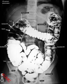 BE w/ Air from KU Radiographic Anatomy