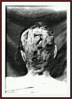Abby Durfee Borden Autopsy photo. Photo Credit: Lizzie Andrew Borden Crime Library