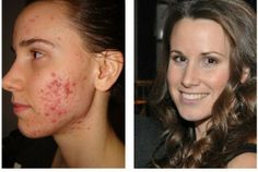 3 Foods You Must Avoid for Healthy Skin (And How I Healed My Acne)
