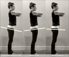 The Easy Antidote to a Misaligned Pelvis, or, How to Fix Your Pelvis Alignment - Pilates Tonic Chattanooga Posture Fix, Improve Posture, Pelvic Tilt, Pelvic Floor, Hip Pain, Back Pain, Hip Alignment, Alexander Technique, Diastasis Recti