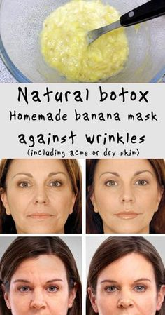 Natural botox: Homemade banana mask against wrinkles (including acne or dry skin) #health #beauty #fitness #diy