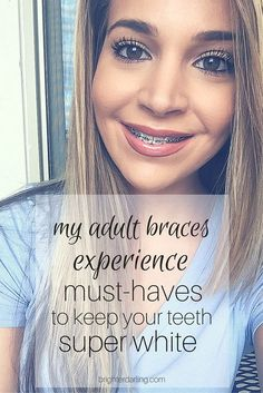 How I keep my teeth super white while wearing braces // women with braces // adult braces // <a href='http://brighterdarling.com' rel='nofollow' target='_blank'>brighterdarling.com</a>