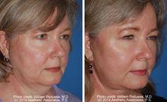Face Lift Photo Gallery - Before and Afters - Patient 30