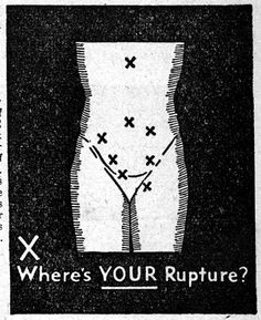 And lastly, a little rupture-related illustration. Turner Almanac, 1941