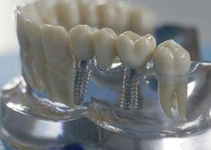 Зубные имплантанты Харьков