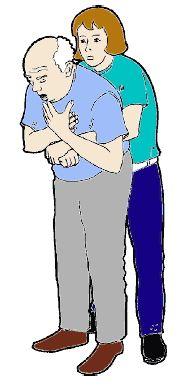 Si les 5 claques dans le dos ont été inefficaces, il faut appliquer 5 compressions abdominales selon la manœuvre de Heimlich.