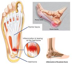 10 Ways To Tame Plantar Fasciitis! Walking and an active lifestyle is a reward for many women that like to stay fit, happy, and on the go (like all of us here at Therafit). However, the development of Plantar Fasciitis can get in the way of your daily activities and routines.