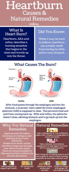 An Overview of Heartburn.  Includes Heartburn Causes and Natural Remedies | Acid Reflux | Health Infographic |