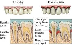 How Can I Treat with Gum Disease