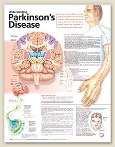 Understanding Parkinson's Disease anatomy poster lists symptoms such as decreased/loss of sense of smell, depression, sleep problems, etc. Neurology for doctors and nurses. by latonya Occupational Therapy, Physical Therapy, Speech Therapy, Speech Pathology, Nursing Notes, Medical Information, Sleep Apnea, Alzheimers, Nursing Students