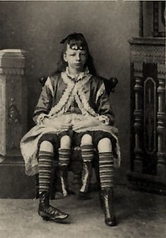 Josephine Myrtle Corbin was born in Lincoln County, Tennessee in 1868. She was born a dipygus, meaning that she had two separate pelvises side by side from the waist down. The extra legs were part of a twin that did not split correctly, like Frank Lentini with his third leg. Each of her smaller inner legs was paired with one of her outer legs. She was said to be able to move her inner legs, but they were too weak for walking. She had four daughters and a son.