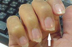 Comment éviter les ongles cassants