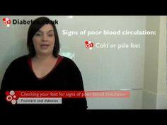 Diabetes Footcare