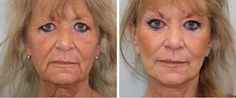 Refreshing And Energizing Facial Skin With Face Toning Gymnastics