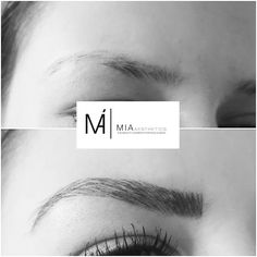 #MIAAesthetics #Microblading #Eyebrows #MIABlackDiamondBlading #beauty