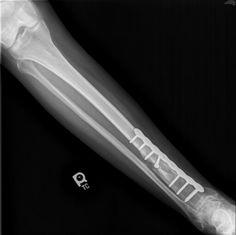 Broken leg gatesville dewayne76528