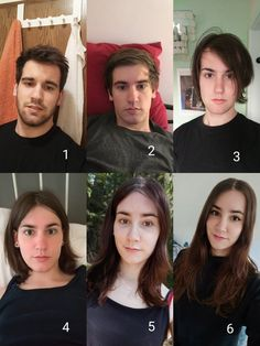 Transgender Before After
