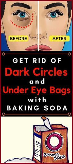 Remove Dark Circles And Under Eye Bags With Baking Soda And Lemon Naturally  #Remove #Dark #Circles #Eye #DarkCircles #beauty