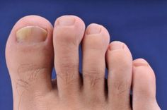 Foot Care with vinegar