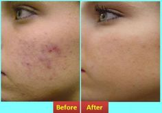 How to Get Rid Of a Pimple Overnight #stepbystep
