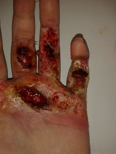 oooo thats a nasty burn ( my special effects makeup done in uni ) copyright rebbecca convey
