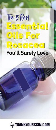 Best Essential Oils For Rosacea- Essential Oils for your healthy, clear skin #EssentialOils #Rosacea #ThankYourSkin