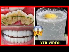 Remover, Glass Of Milk, Drinks, Food, Youtube, Toilet Cleaning Tips, Household Cleaning Tips, Homemade Beauty Tips, Decayed Tooth