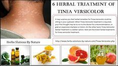 6 Herbal Treatment of Tinea Versicolor