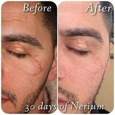 Nerium Cremas te borran cicatrices , Nerium México te invita a formar parte de nuestro equipo llama al 01800-890-3239 ó visita www.neriumconsultor.com
