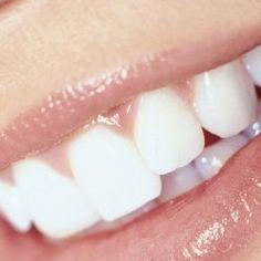 Todos los mitos y las verdades sobre tu estética dental
