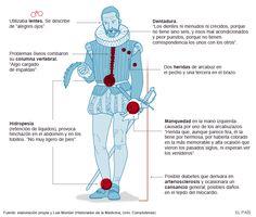 Dolencias de Miguel de Cervantes