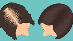 Regrow Thick Strong Hair fast remedy hair Pinterest
