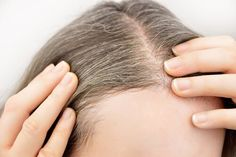 Hair Remedies WHITE HAIR - Causes, Home Remedies, Precautions - This article describes in detail about WHITE HAIR - the various causes of their premature occurrence, effective home remedies, Precautions Box Hair Dye, Box Dye, Dyed Hair, Grow Long Hair, Grow Hair, Home Remedies, Natural Remedies, Lila Shampoo, Hair Pigmentation