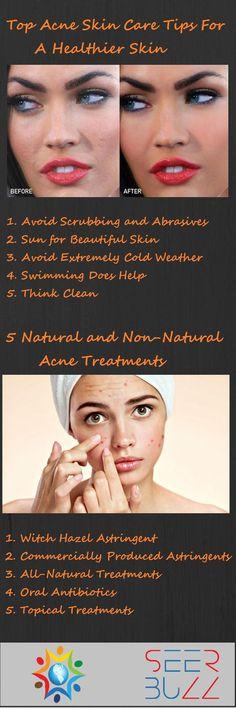 Read more @ SeerBuzz.com  #health #healthcare #skin #skincare #acne