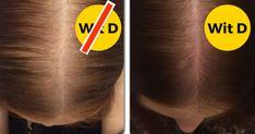Blond, Curly Hair Styles, Fibromyalgia