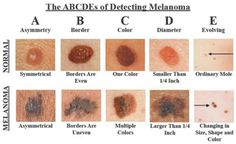 The Alphabet of Detecting Melanoma One of the most common forms of cancer in the US is skin cancer, with nearly 5 million people treated for it every year. There are more new cases of skin cancer d. Natural Cures, Natural Health, Cancerous Moles, Sante Bio, Skin Moles, Red Moles, Cancer Fighting Foods, Skin Tag Removal, Types Of Cancers