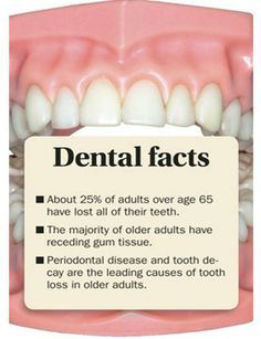 This is why you need to take care of your teeth! | Facts ...