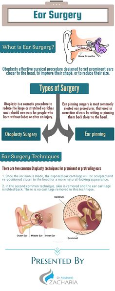 Ear surgery procedure is usually done to move prominent ears closer to the head and improve their overall shape and size.