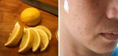 10 Common Things You Should Never Put On Your Face