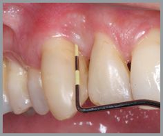 NOT my teeth! One of the Wonderful Benefits of Bone Broth - Optimal Oral Health! How to Reverse periodontal problems with diet and Bone Broth. Gum Health, Teeth Health, Dental Health, Health And Nutrition, Health And Wellness, Oral Health, Dental Care, Holistic Remedies, Natural Home Remedies