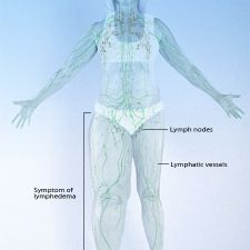 TREATMENTS AND DRUGS OF LYMPHEDEMA