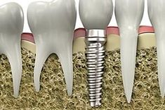 Implant Dentristry, Oshawa Dental Implants Near You Implants Dentaires, Dental Implants, Danette, Dental Bridge, Dental Hygienist, Dental Health, Muffin, Instruments, Cocktail